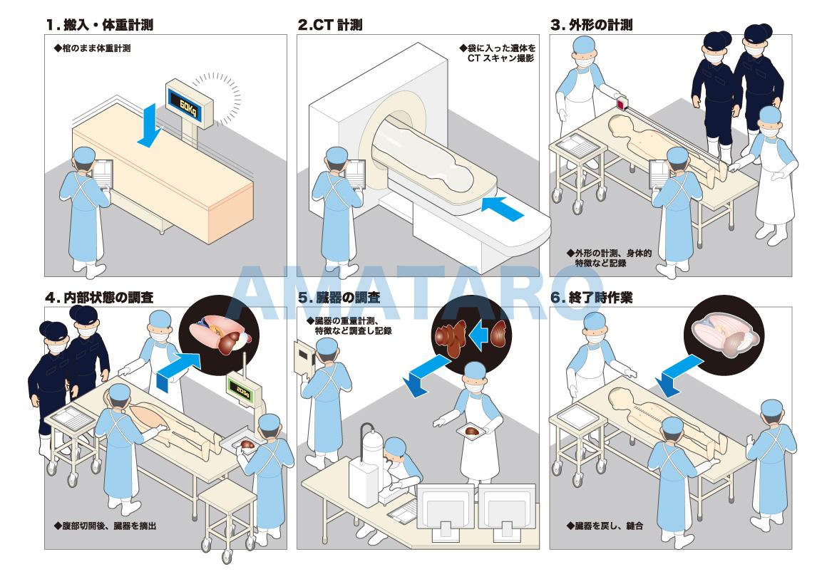 司法解剖 - Autopsy#Forensic autopsy